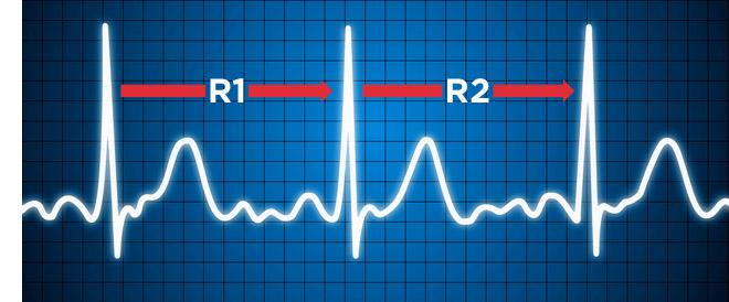 Herzfrequenzvariabilität (HRV)