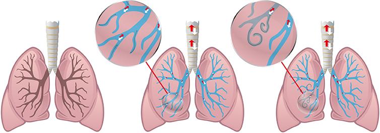 RePneu Coils - Spiralen bei COPD