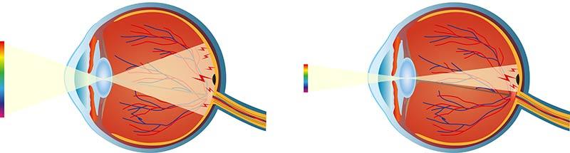Makuladegeneration - Schädigung der Makula- und Retinazellen durch Lichteinfall